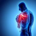 五十肩(症状と治療経過)